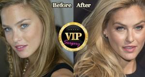 bar refaeli plastic surgery