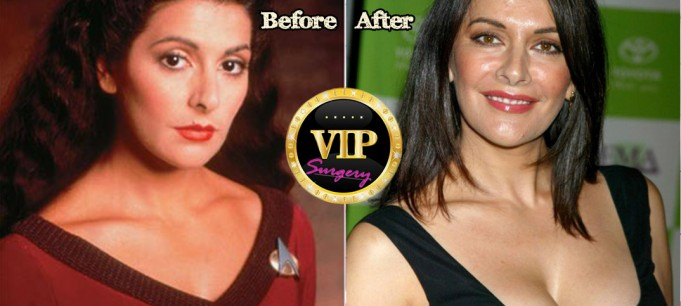 marina sirtis plastic surgery
