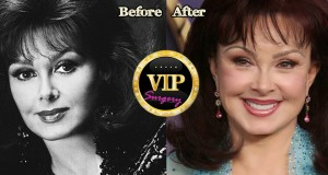 naomi judd before and after plastic surgery