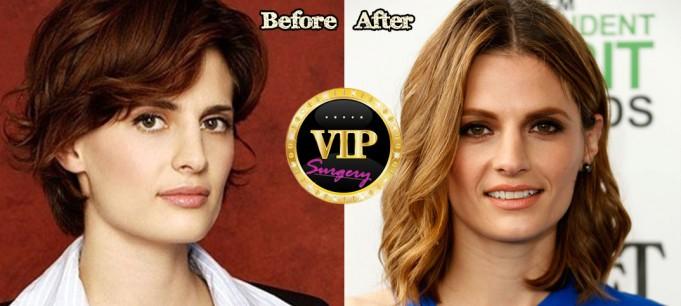 stana katic plastic surgery
