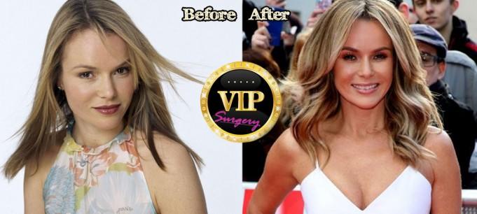 Amanda Holden Plastic Surgery