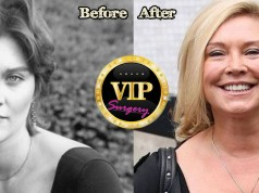 Amanda RedmanPlastic Surgery