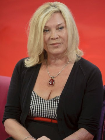 Amanda Redman Facial Reconstruction Surgery Vip