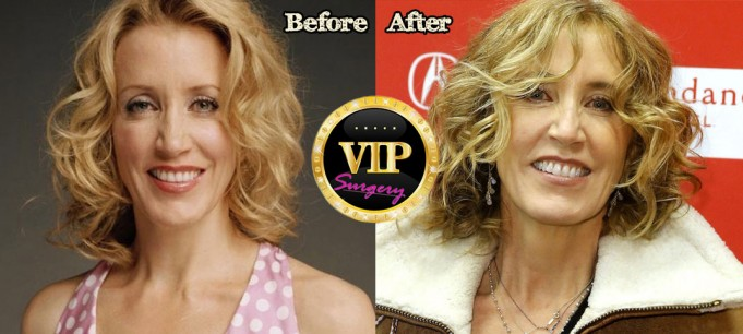 Felicity Huffman Plastic Surgery Before and After Photos