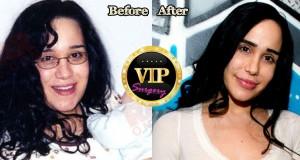 octomom plastic surgery