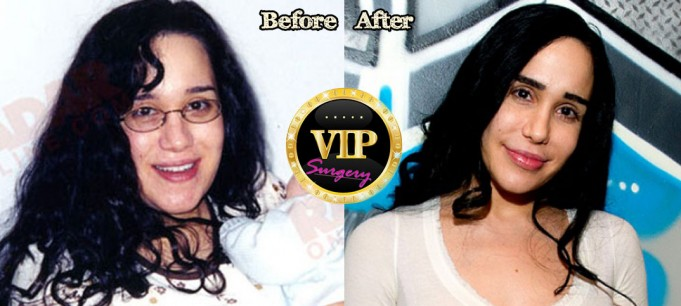 octomom plastic surgery