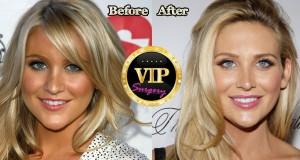 stephanie pratt plastic surgery