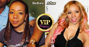 tameka cottle plastic surgery