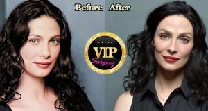 Joanne Kelly Plastic Surgery