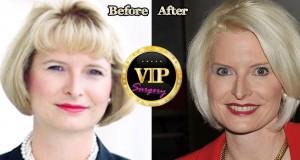 Callista Gingrich Plastic Surgery