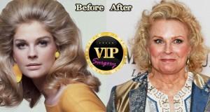 Candice Bergen Plastic Surgery