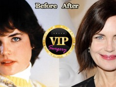 Elizabeth McGovern Plastic Surgery