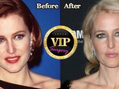 Gillian Anderson Plastic Surgery