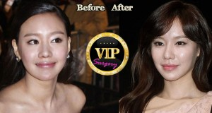 Kim Ah-Joong Plastic Surgery