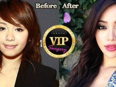Michelle Phan Plastic Surgery