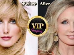 Morgan Fairchild Plastic Surgery