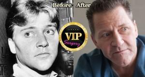 Scott Thorson Plastic Surgery