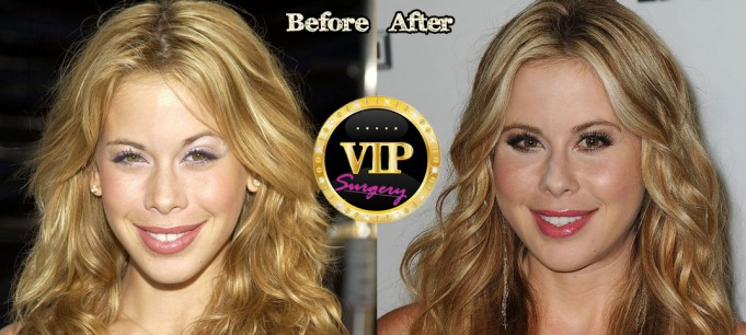 Tara Lipinski Plastic Surgery