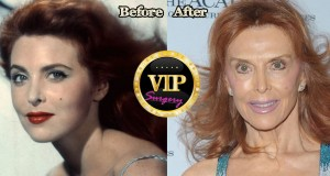 Tina Louise Plastic Surgery
