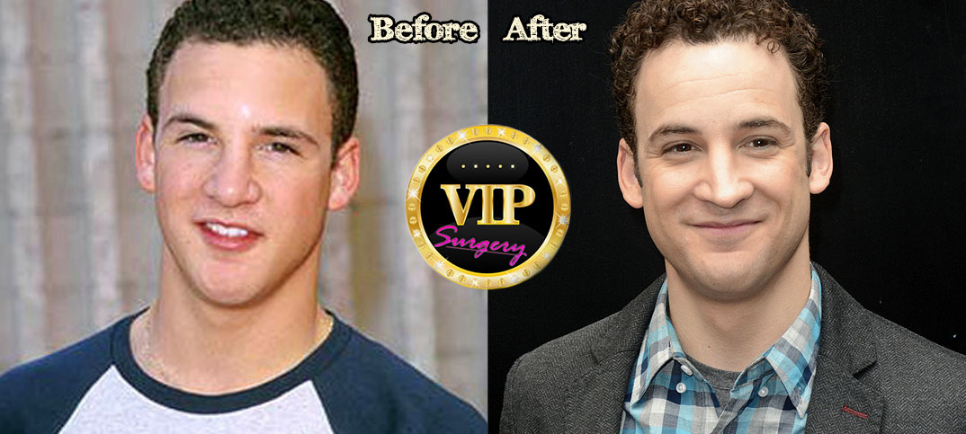 ben savage nose job - 1074×483