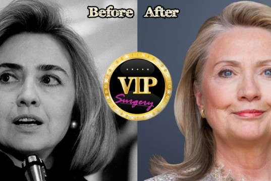 Hillary Clinton Facelift