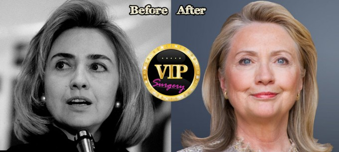 Hillary Clinton Facelift