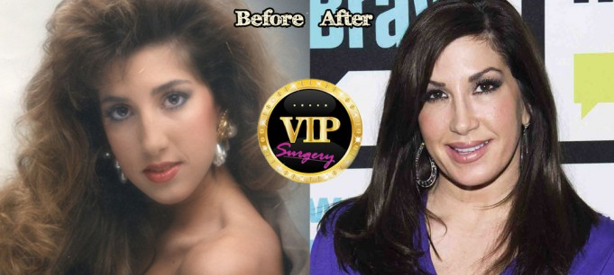 Jacqueline Laurita Plastic Surgery