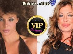Kelly Lebrock Plastic Surgery