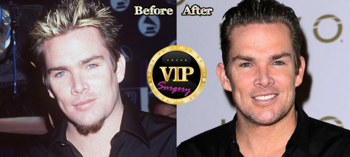 Mark Mcgrath Plastic Surgery