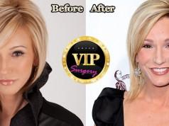 Paula White Plastic Surgery