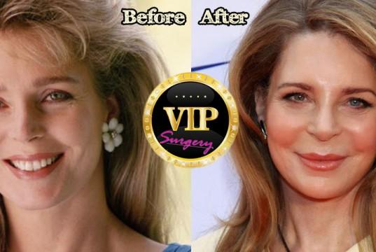 Queen Noor Plastic Surgery