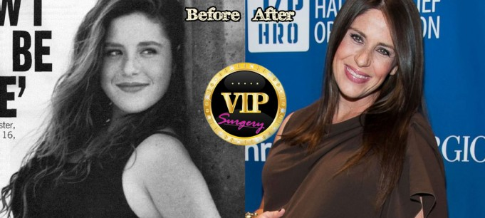 Soleil Moon Frye Before Plastic Surgery
