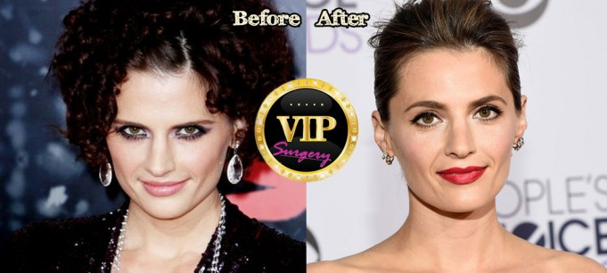Stana Katic Nose Job