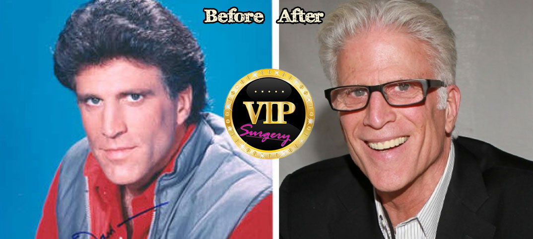 Ted Danson Bald Implants