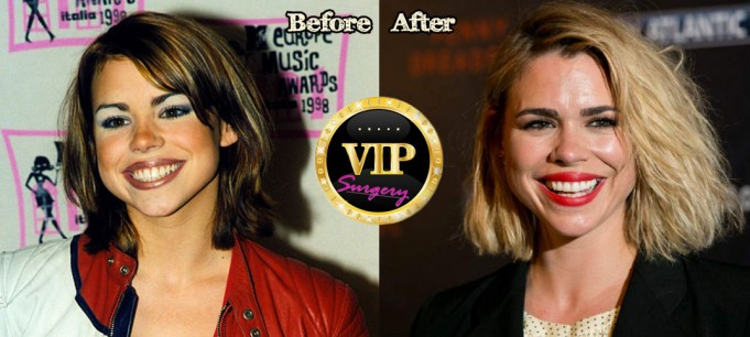 Billie Piper Plastic Surgery