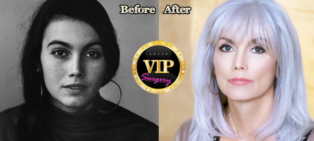 Emmylou Harris Plastic Surgery Before And After Pictures