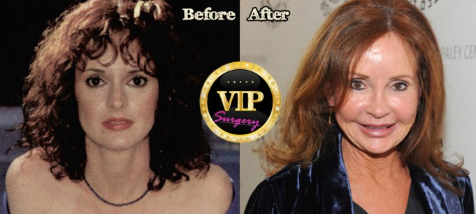 Jacklyn Zeman Plastic Surgery