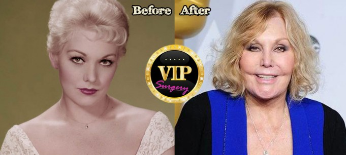 Kim Novak Plastic Surgery