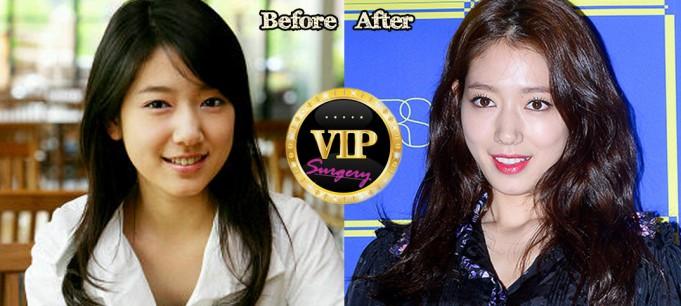 Park Shin-hye Plastic Surgery
