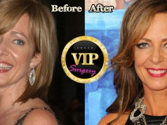 Allison Janney Plastic Surgery