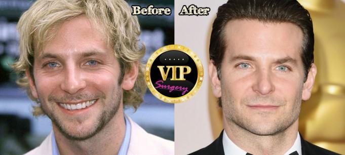 Bradley Cooper Plastic Surgery