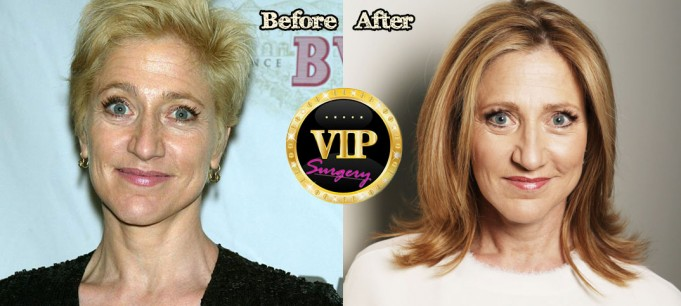 Edie Falco Plastic Surgery