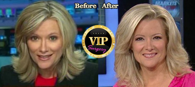 Gerri Willis Plastic Surgery