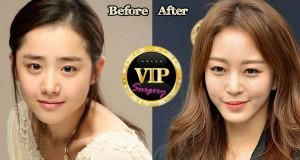 Han Ye Seul Plastic Surgery