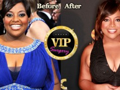 Sherri Shepherd Breast Reduction