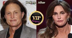 Caitlyn Jenner Plastic Surgery