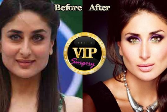 Kareena Kapoor Plastic Surgery