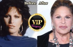 Lainie Kazan Plastic Surgery