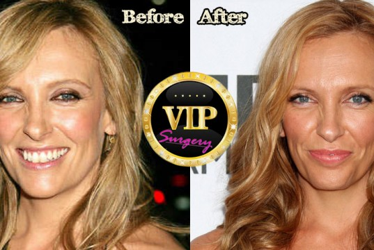 Toni Collette Plastic Surgery